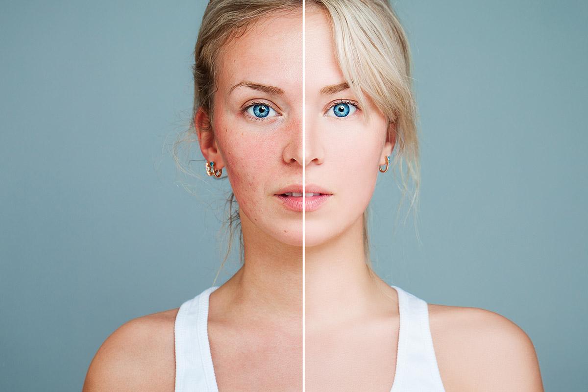 Silizium für bessere Haut